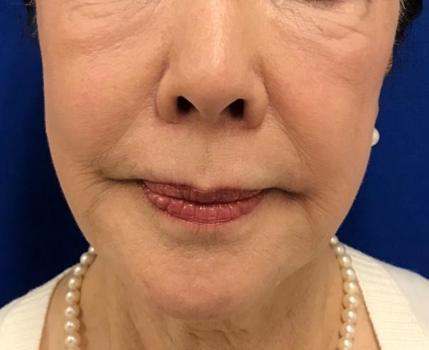 ヒアルロン酸注射 こめかみ・まぶた・頬・ほうれい線 治療前