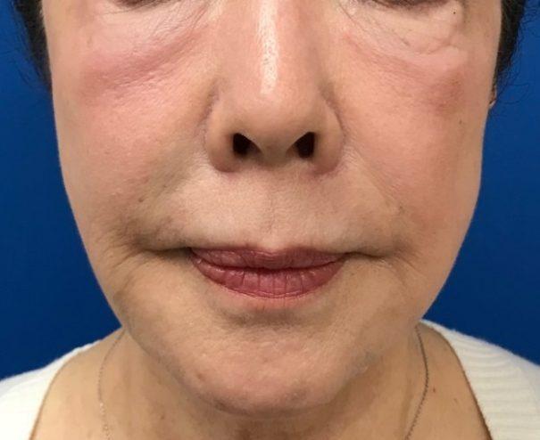 ヒアルロン酸注射 こめかみ・まぶた・頬・ほうれい線 治療後