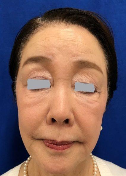 ヒアルロン酸を注入前(ゴルゴ線に注入  ・鼻筋へ注入  ・あごに注入  ・くちびるに注入  ・顔全体に注入)