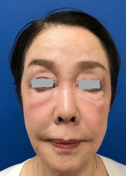 ヒアルロン酸を注入後(ゴルゴ線に注入  ・鼻筋へ注入  ・あごに注入  ・くちびるに注入  ・顔全体に注入)