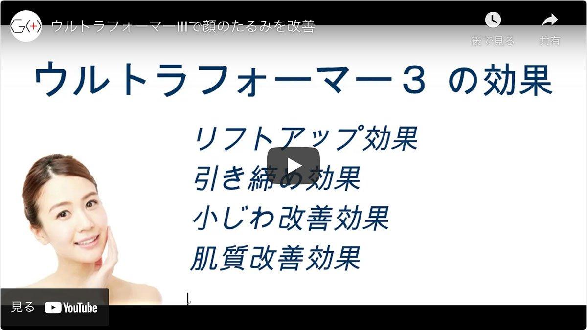 五本木クリニックのハイフシャワー施術動画