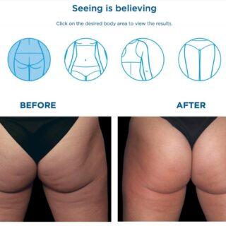 脂肪を落としたいなら、まずセルライトを無くしましょう