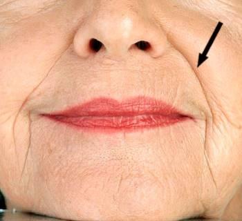 鼻唇溝  ほうれい線と一般的に呼ばれるシワ