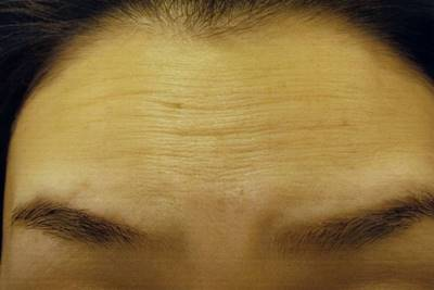 額のシワは表情筋がギューッと収縮するよって生じる