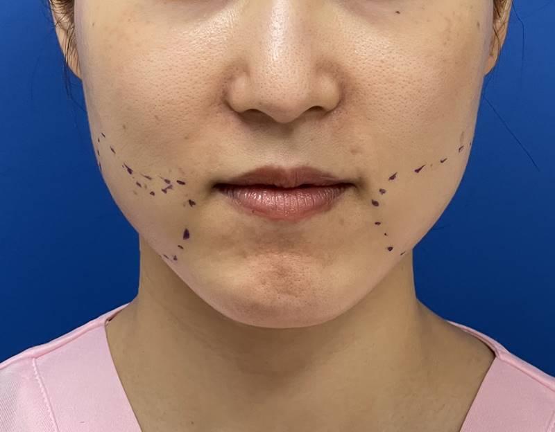 顔のどの部位の脂肪をとりたいのか患者さんの希望を聞いた上でデザインを考え、マーキングをします