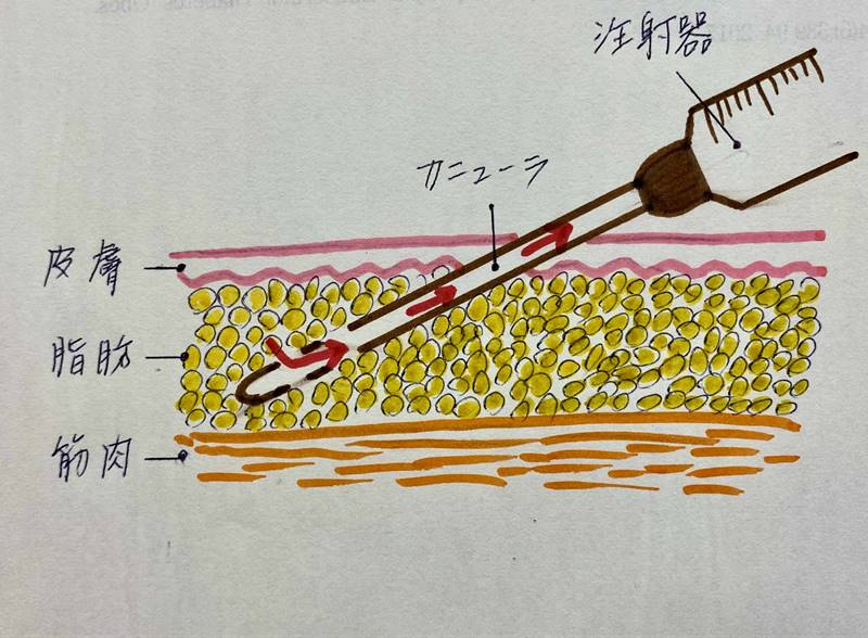 脂肪吸引用カニューラを差し込んで、陰圧をかけた注射器で脂肪を吸いとっていきます。