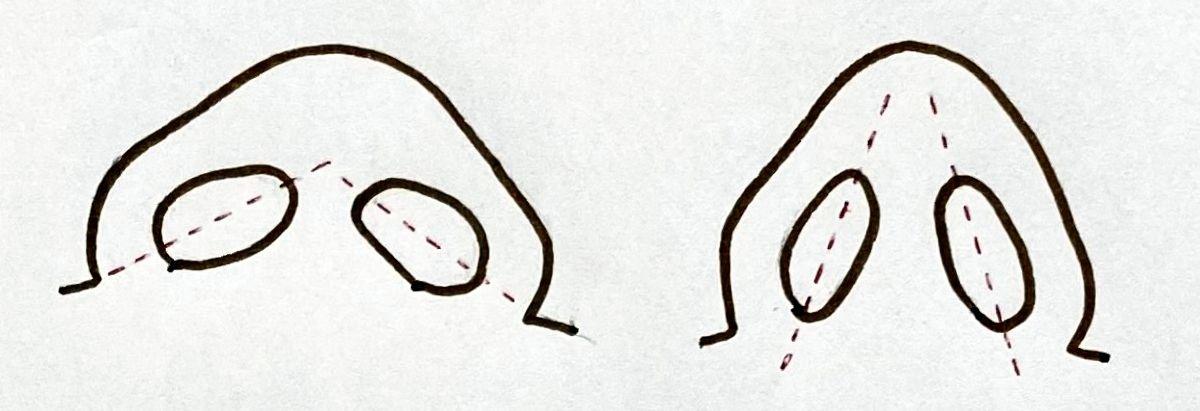 横に広い小鼻