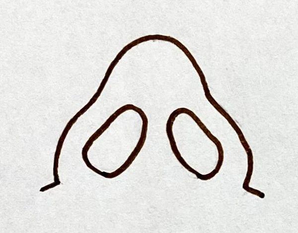 正常な鼻の形
