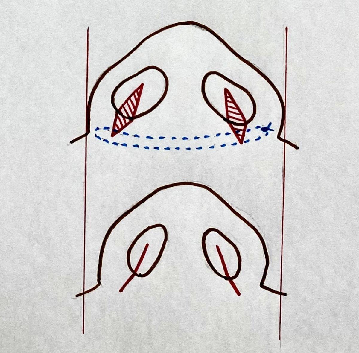 小鼻縮小術
