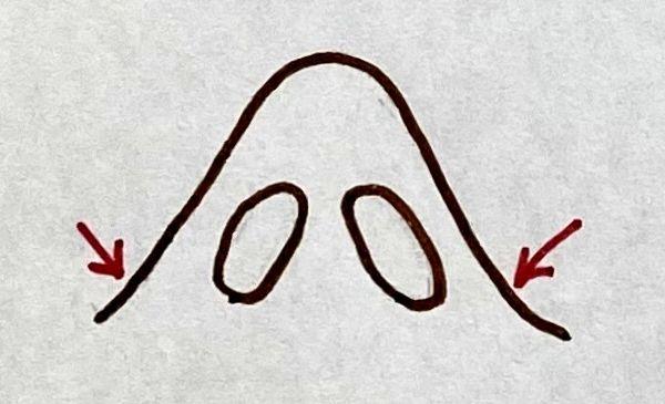 小鼻縮小術の失敗例 小鼻を切り取りすぎて富士山の裾野のようなくびれのない不自然な小鼻となっている