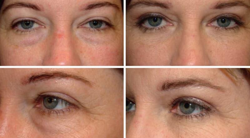 経結膜下眼瞼形成術