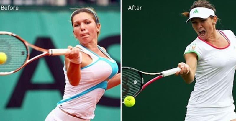 キャリアを救うために乳房縮小手術を受けたテニス選手