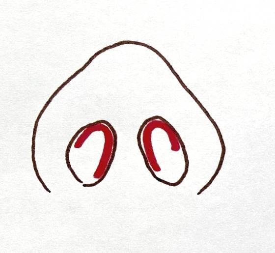 鼻の手術クローズ法(正面から見た図)