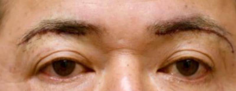 上まぶたのたるみを解消する眉下切開症例