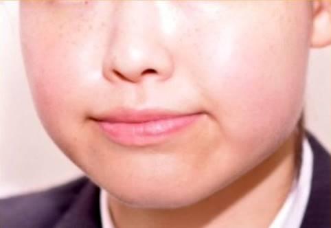 頬やあごの下に余分な脂肪があると顔が大きくなります