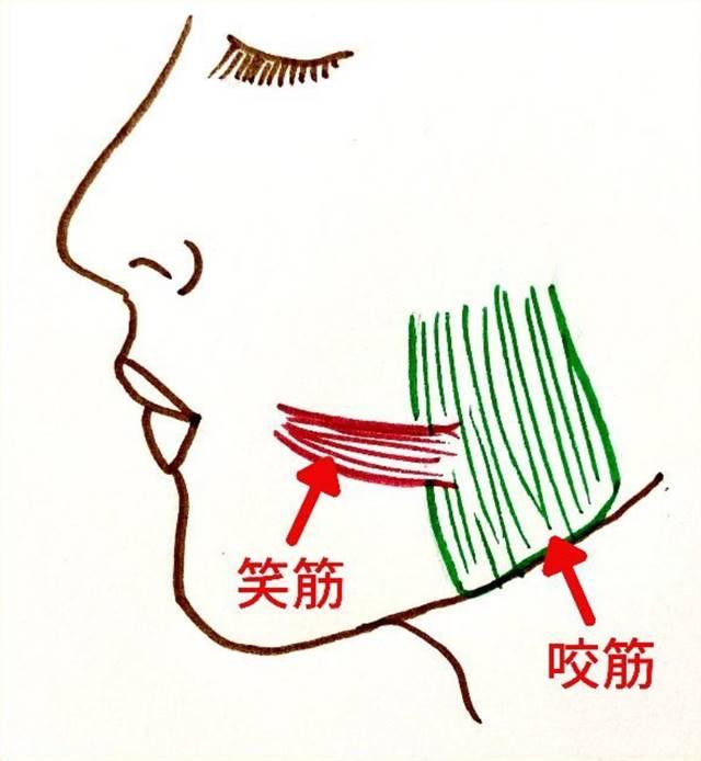 笑筋は口角を横に引き、笑う表情やえくぼを作る筋肉です。この笑筋は咬筋の表面にくっついています。