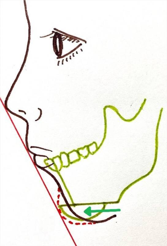 あご先の骨を切り、前方に出して固定する骨切り手術