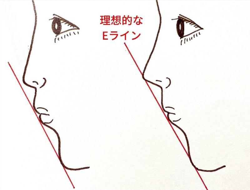 鼻先がEラインより低い人