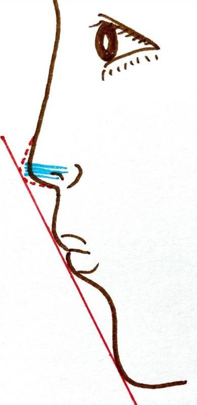 8~12本の糸を、鼻先の下に立てるように束状に入れ、鼻先を持ち上げるように埋め込む