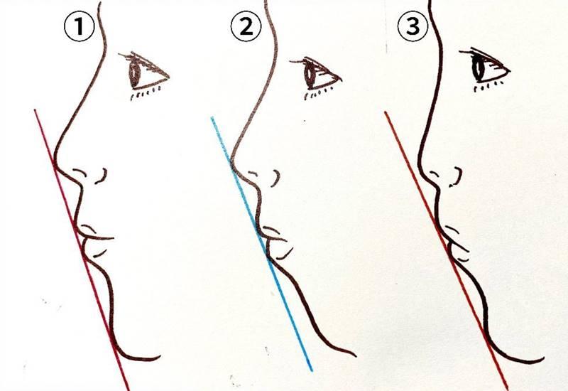 日本人の場合であれば、①が理想的、②は下あごが後退している、③は鼻先が低いというようにEラインは美容外科的な観点から分類されます