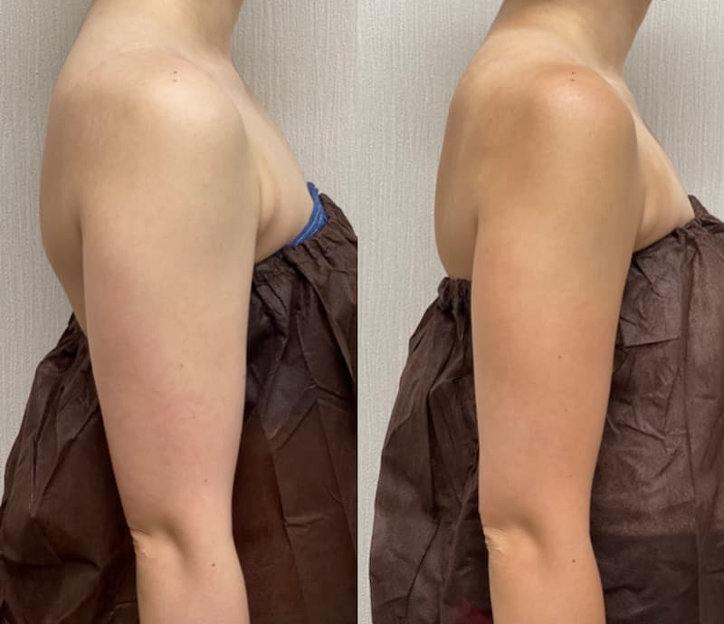 二の腕脂肪吸引ビフォー・アフター