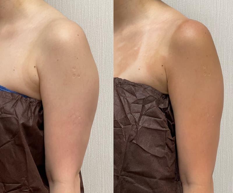 脂肪吸引の効果、二の腕のビフォー・アフター