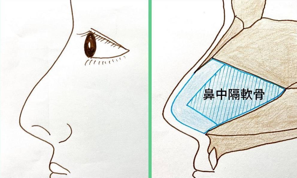 鼻中隔とは鼻腔の内部を左右に仕切る壁のことで、青色の部分が軟骨、茶色の部分が骨です。