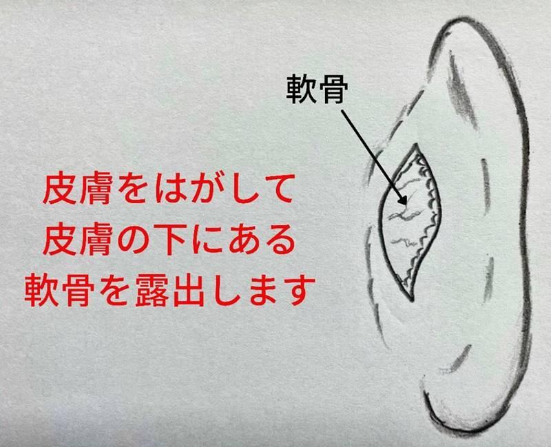 右耳の皮膚を剥がして皮膚の下にある軟骨を露出します