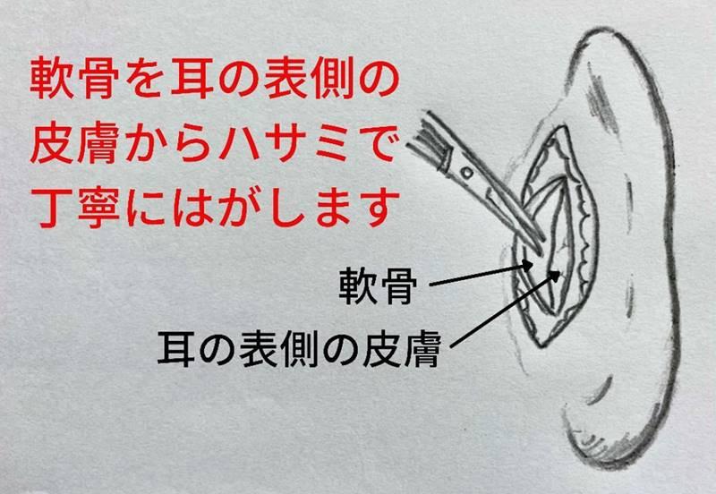 軟骨を耳の表側の皮膚からハサミで丁寧に剥がします