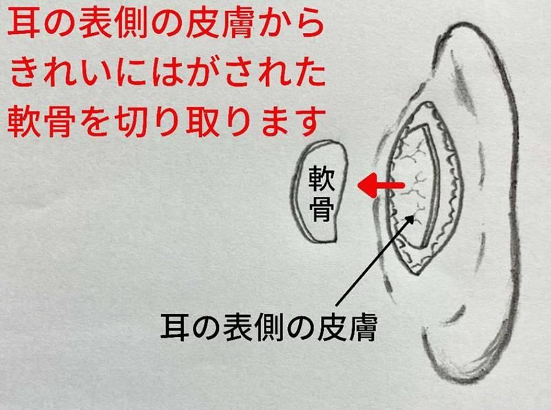 耳の表側の皮膚からきれいに剥がされた軟骨を切り取ります