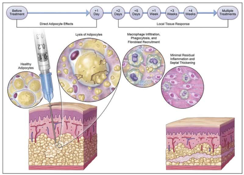 脂肪溶解注射チンセラプラス