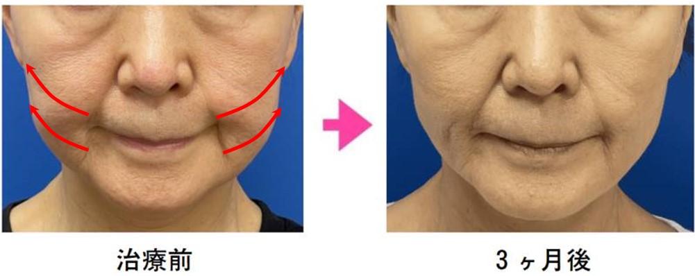 VOVリフトの施術事例 60代女性 6本使用+脂肪吸引