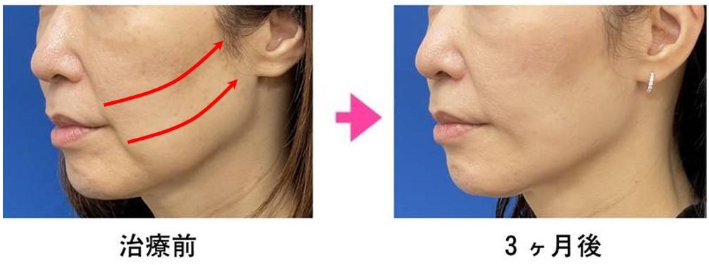 VOVリフトの施術事例 40代女性 6本使用+脂肪吸引